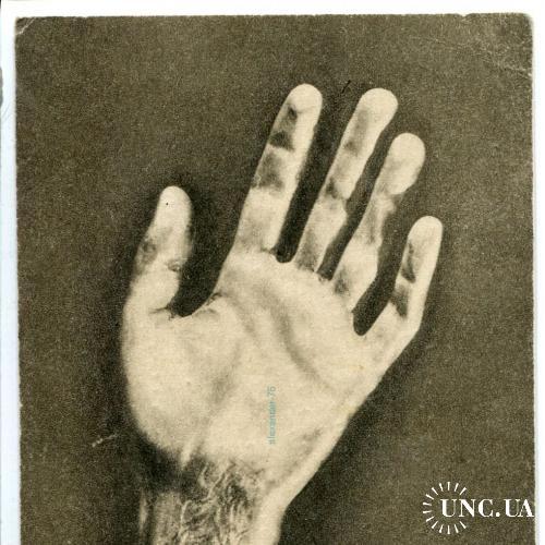 Фридерик Францишек Шопен. Его рука Оригинальная открытка.